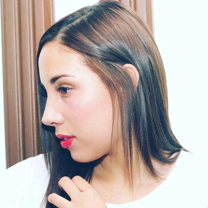 Rinoplastia Luisa Fernanda W
